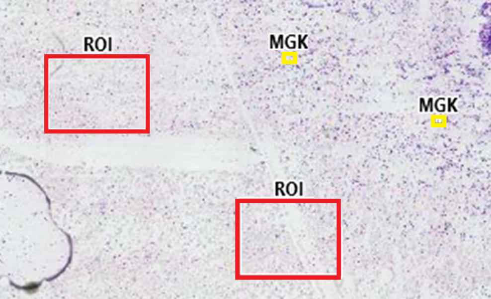 Automatic selection of regions of interest (ROI) and identification of megakaryocytes (MGK).
